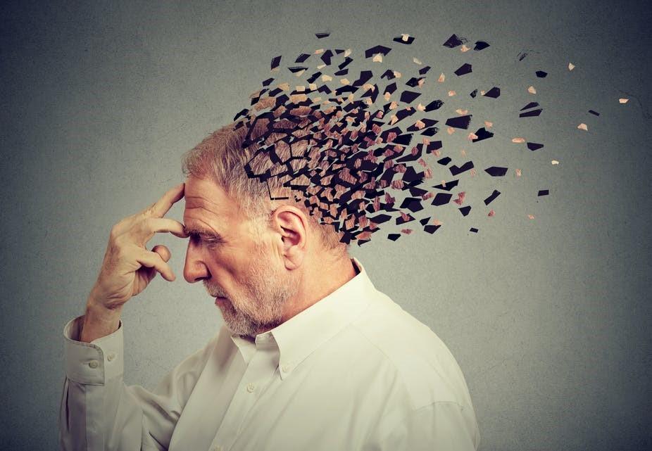 Image result for Alzheimer's Disease