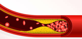 Image result for Cholesterol in blood